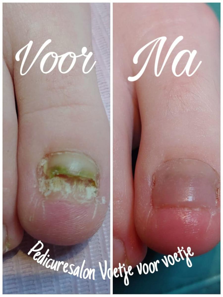 nagelreparatie-voor-na-voetjevoorvoetje